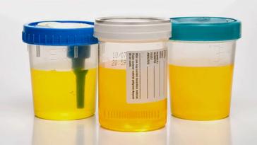 urine-cups