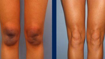 Home Remedies For Dark Knee - How Get Lighten Knee