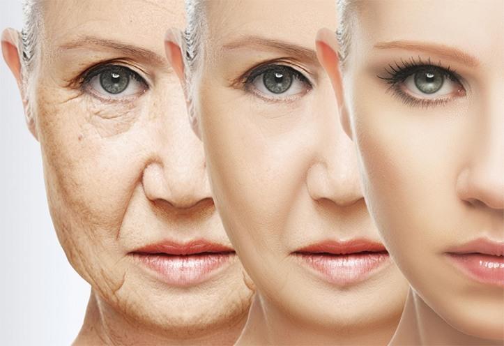 Eliminate facial wrinkles houston
