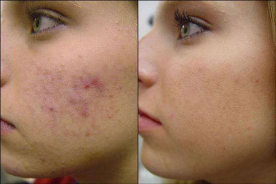 Facial-Scars