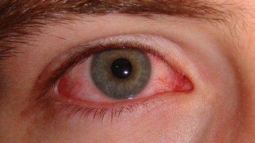 burning-eyes-1