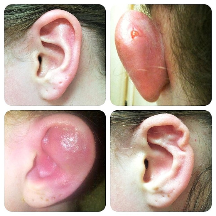 How To Treat Infected Ear Piercing How Nigeria News