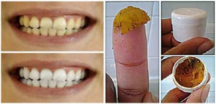 Be-Your-Own-Dentist-Heal-Cavities-Gum-Disease-and-Whiten-Teeth-with-This-Natural-Homemade-Toothpaste