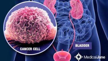 bladdercancer