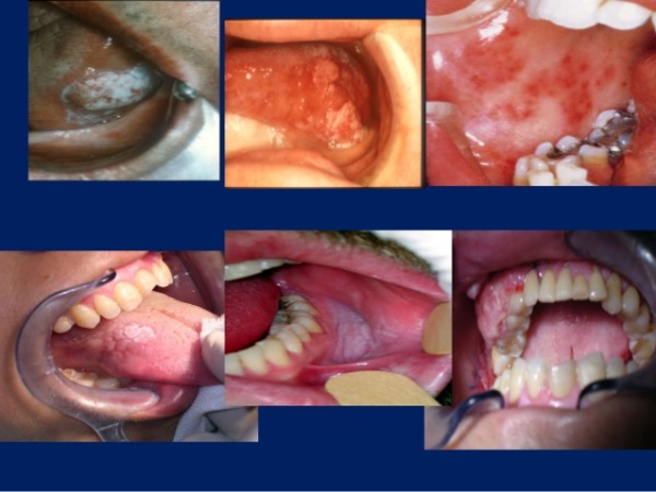 oral-cancer-mouth