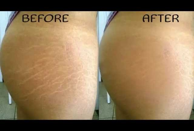 makeup i stretch marks are visible lines on the skin surface with an ...