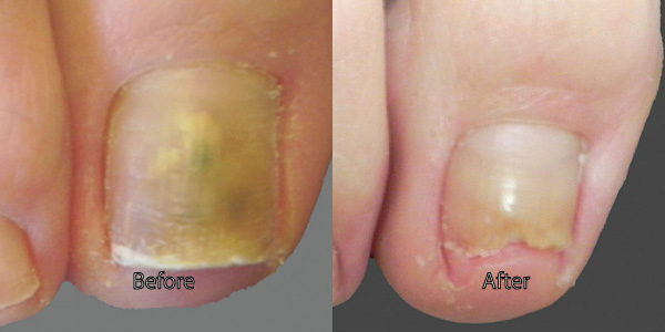 How To Get Rid Of Toenail Fungus Must Read