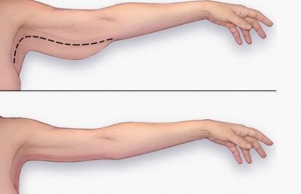 arm-fat-620x400