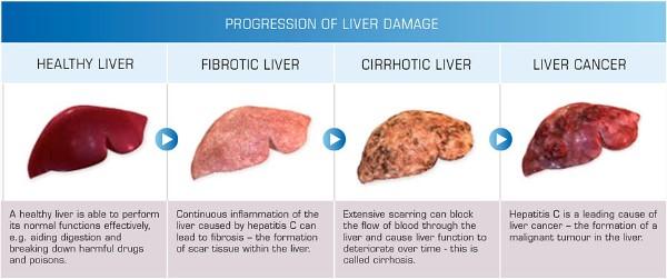 -liver-damage