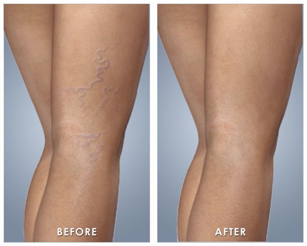 how to get rid of veins on legs at home