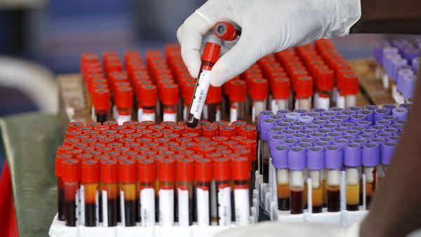 blood-samples