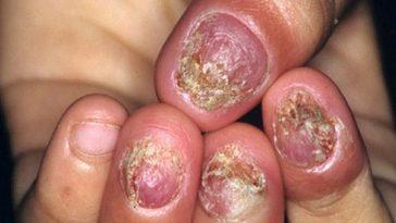 diseased fingernails