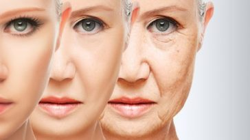 aging-woman