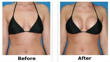 natural-breast-enhancement
