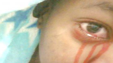Girl who sheds tears of blood