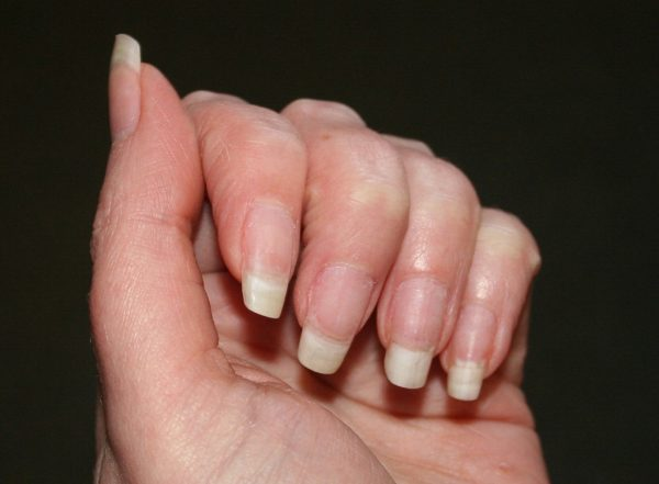 how to fix your nails after biting them