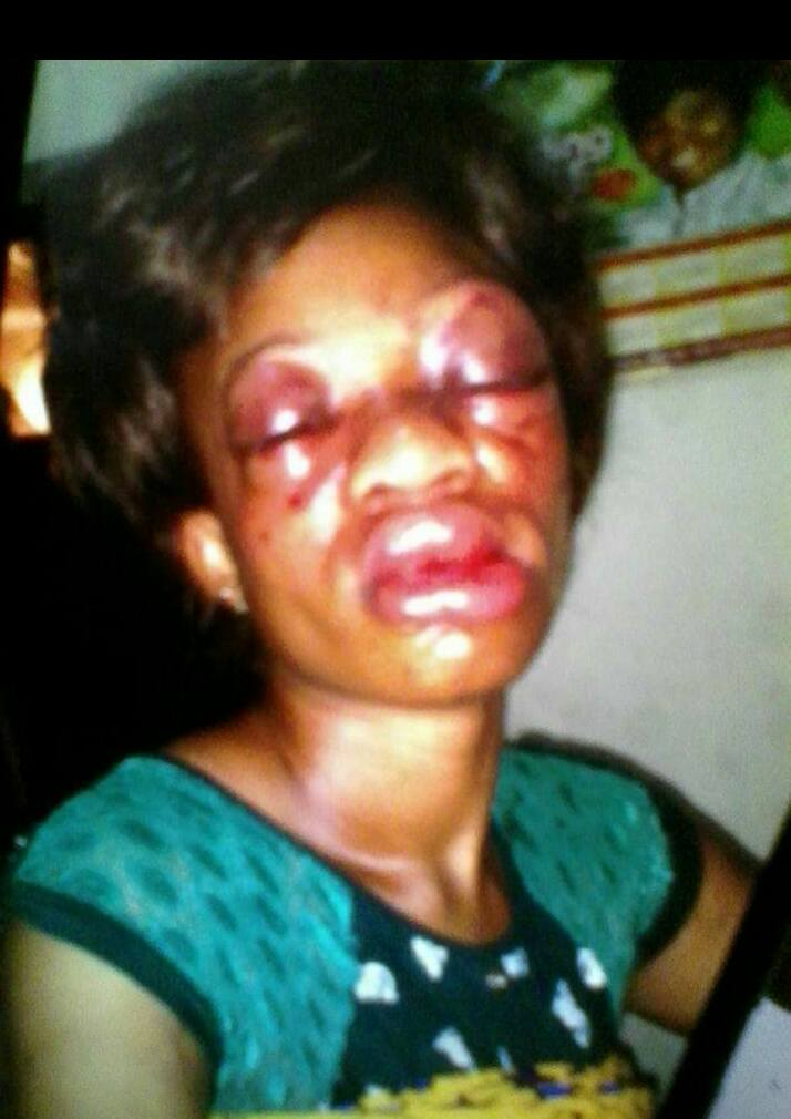 Oh My!!! Nigerian Woman Brutally Beaten By Her Husband