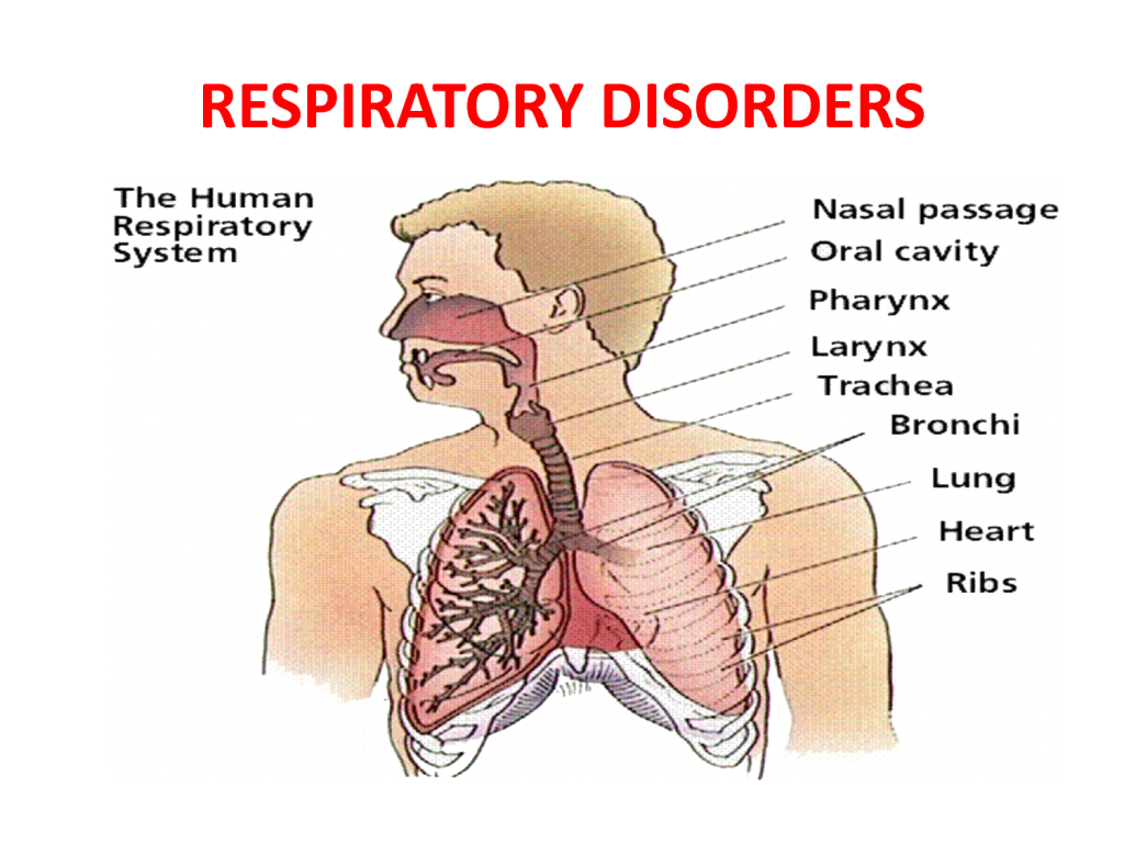 disease of the respiratory system essay Environmental issues associated with respiratory system essay to be able to get the accurate results in order to prevent respiratory diseases.
