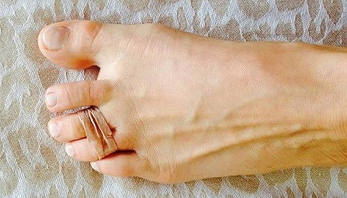 lady wraps her third and fourth toes with rubber band
